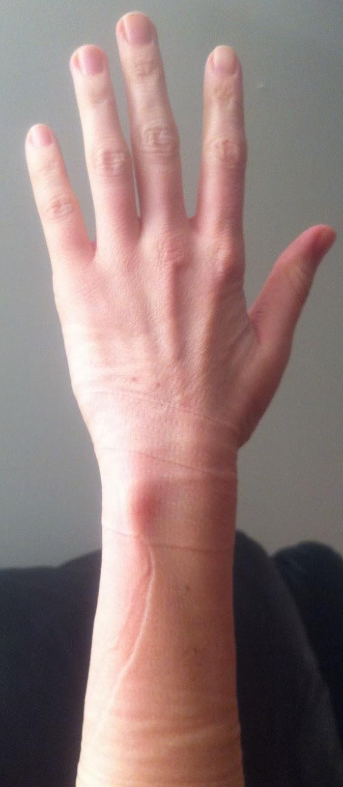 Valutab vasaku kae sormele liiget