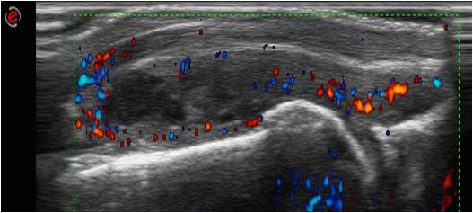 Ravi sponduloosi ja artroosi Naha poletik sormeotste liigestele