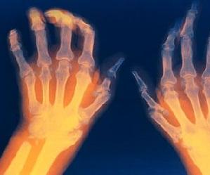 Kuidas vabaneda ola liigese artriidist Excetive haiguse ola liigend