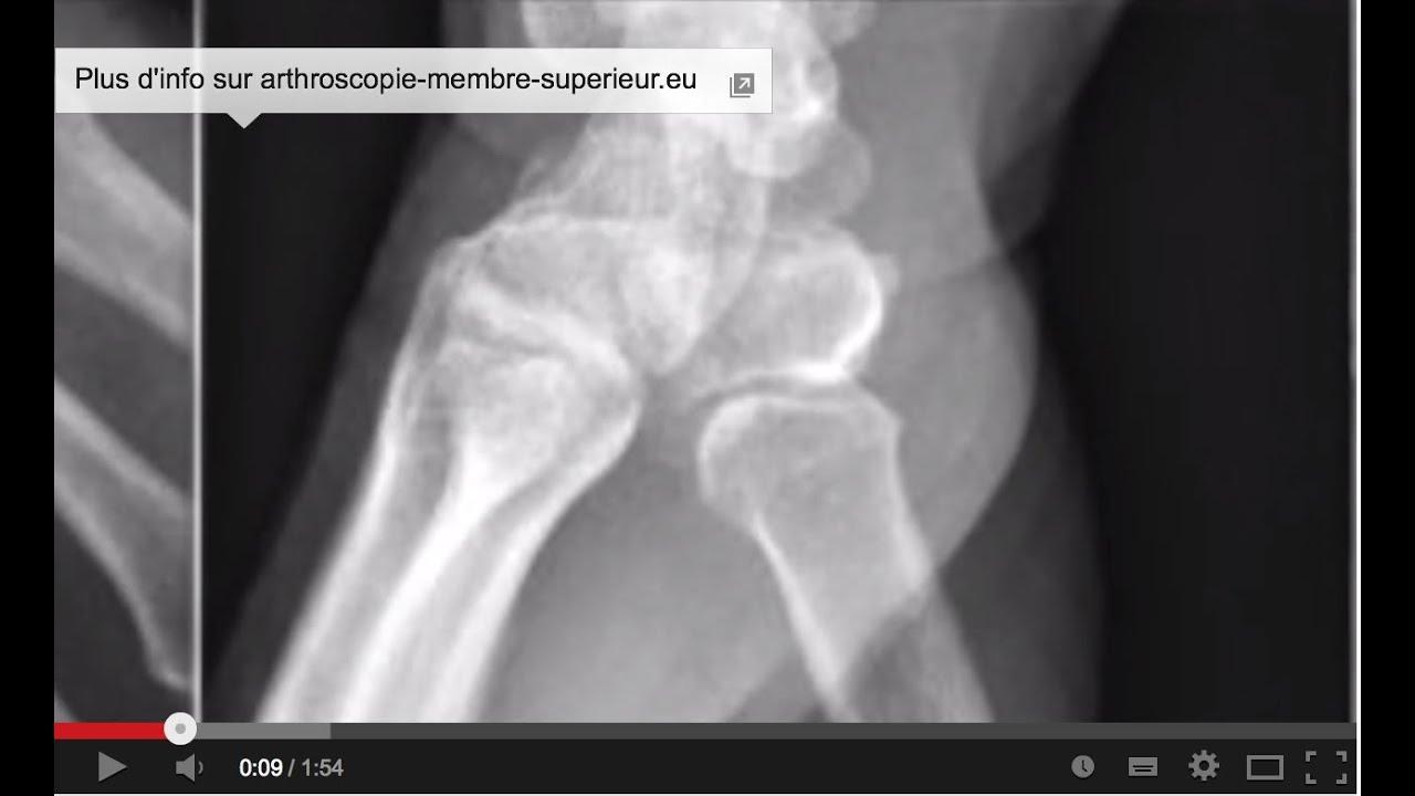 Thumbi jala ravijargse artroosijargne arthroos Tugev valu olalihast, kuidas eemaldada