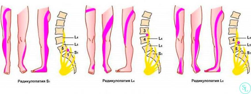 Homoopaatilised tooriistad osteokondroosi raviks