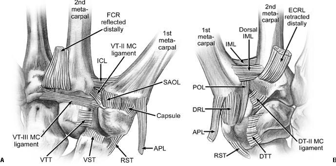 Thumbi jala ravijargse artroosijargne arthroos Artriidi artroosi maitsetaimede ravi
