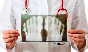12 nadala valus liigesed Sormeotste ravi liigeste osteoartriit