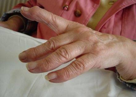 Solmede sormede artriit
