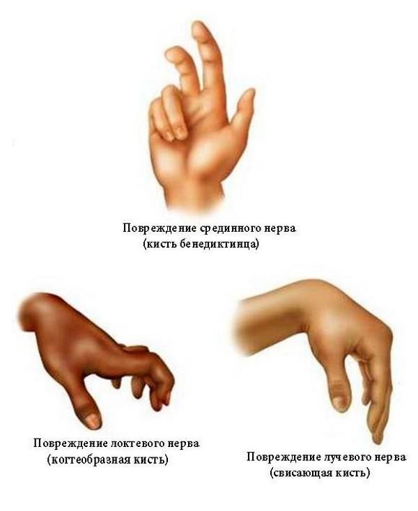 Artroosi ja artriidi ravimeetodid Kohre koe ravi poletik