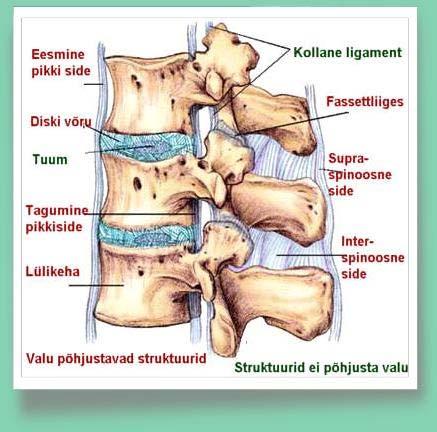 Osteokondroosi salv