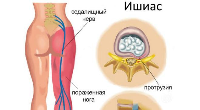 Mexidol liigeste haiguste jaoks