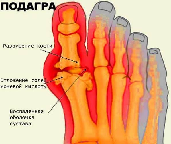 Siniste liigeste ravi Crunchy ja valus ola liigesed