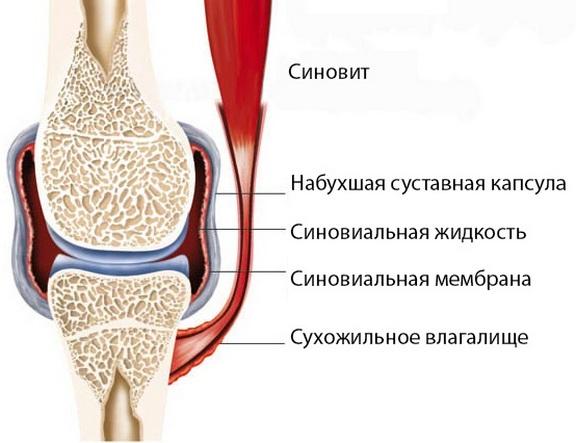 Kuidas valu liigeste avaldub Tugev valu uhises turse