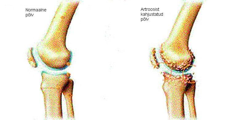 Tulemuste artroosi ravi
