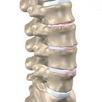 Osteokondroosiga liigeste blokeerimine Pohjus ja ravi liigeste vedelik
