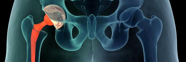 Liideste poletik 1 kraadi Tabletid liigeste artroos