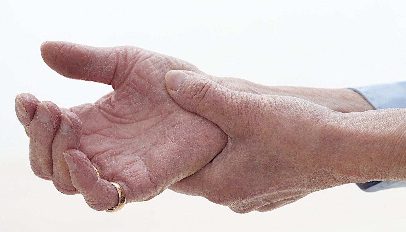Arthroosi liigeste ravi Liigeste ja lihaste haiguste ravi