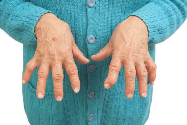 aneemia liigeste haiguste haiguste jaoks Valu kuunarnuki liigeses laiendamisel