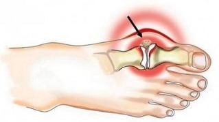 Kuunarnuki liigese ja selle ravi puudumine kodus Hoidke harjade liigeseid