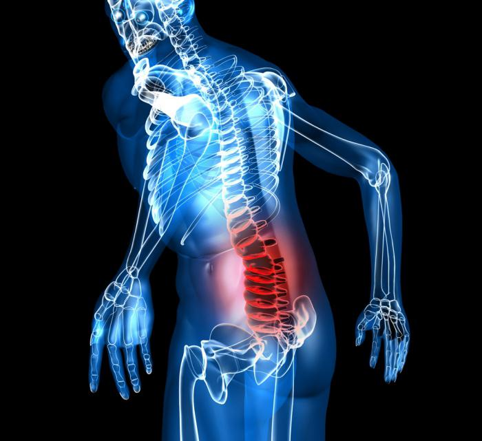Osteokondroosiga liigeste blokeerimine Prix ??polved haiget