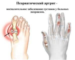 Haiguse liigeste kogu keha valus ola liigesed