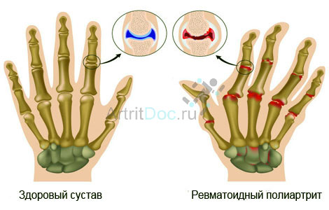 valu liigestes harjade kaed valus liigesed jalgade ravi